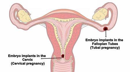 Ectopic Pregnancy Services