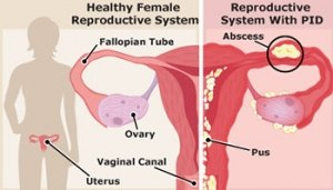 Pelvic Inflammatory Disease Diagram
